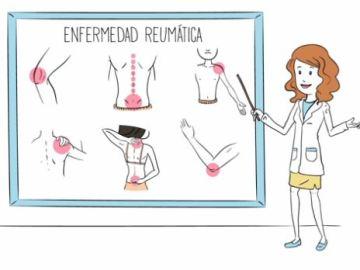 La Sociedad Española de Reumatología lanza un vídeo para concienciar sobre las enfermedad reumáticas