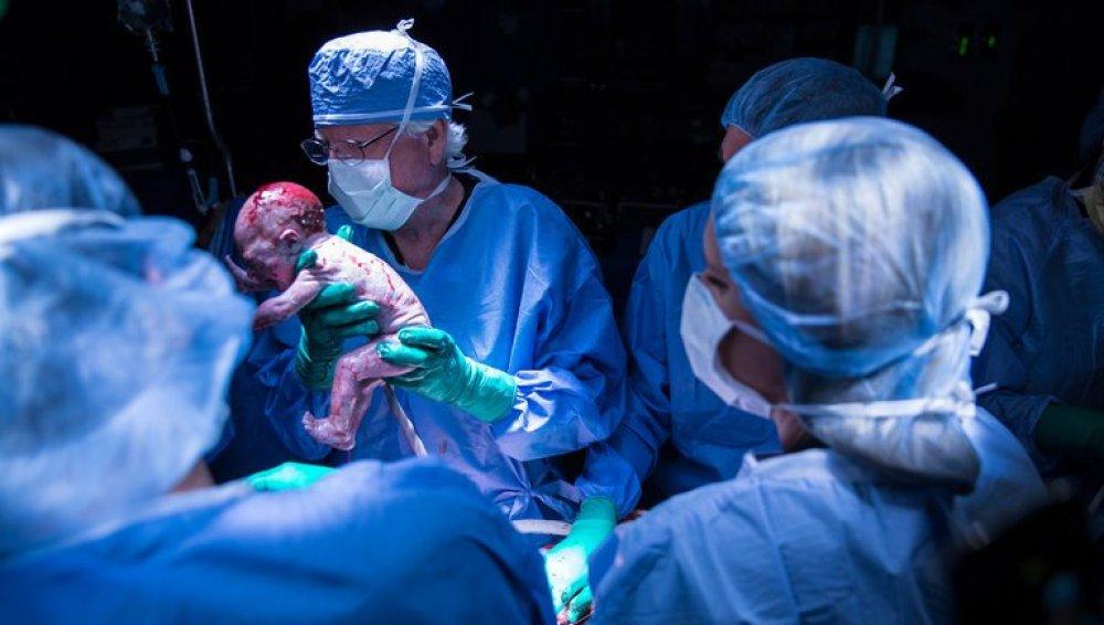 Bebé nacido de un útero trasplantado