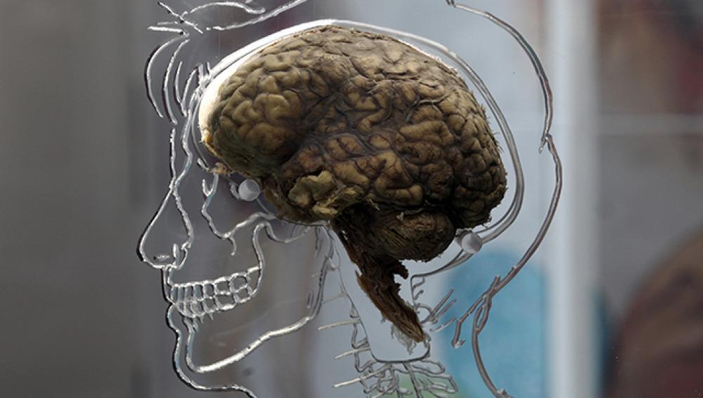 ¿Por qué nuestro cerebro es tan grande?