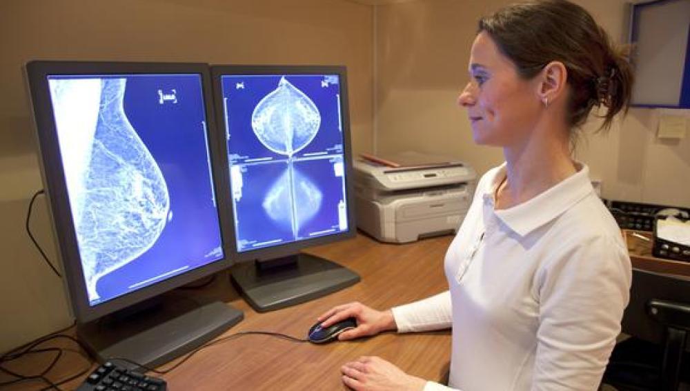 Con esta técnica, las mamografías reducirían su impacto sobre la paciente