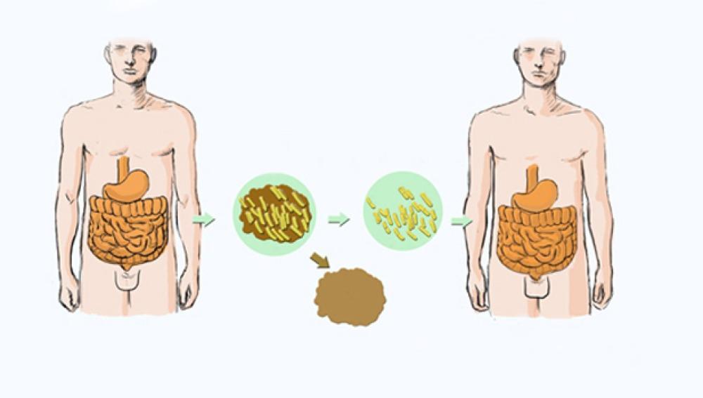 na nueva técnica podría mejorar el trasplante de microbiota intestinal