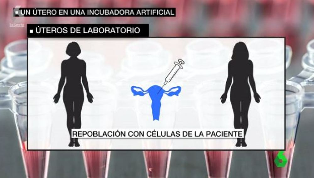 Úteros de laboratorio, una técnica pionera para mujeres que no pueden quedarse embarazadas