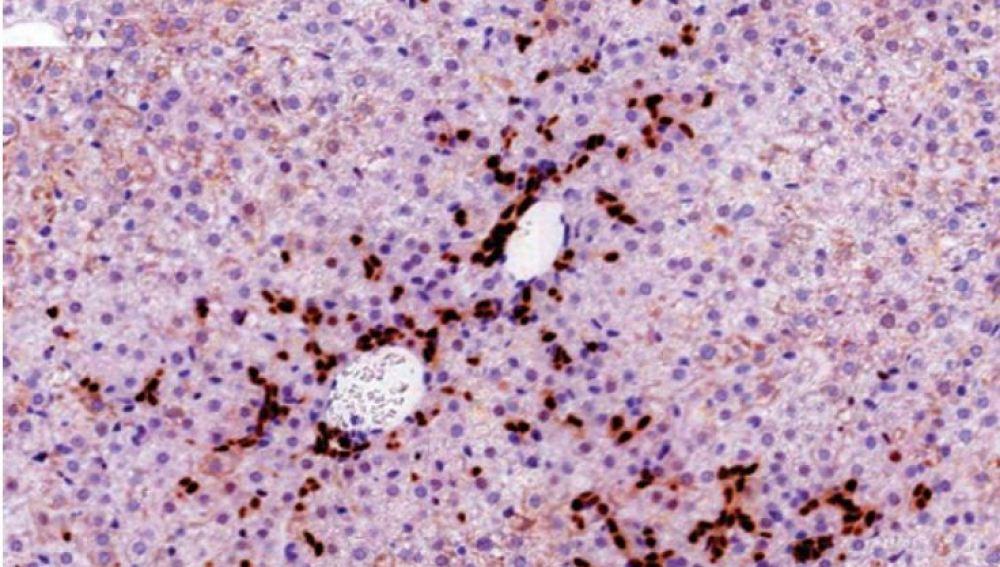 """Sección del hígado de un modelo de ratón en el que los hepatocitos expresan el oncogen URI. La imagen muestra la expansión de las células madre del hígado, llamada """"reacción ductal"""", en los primeros compases de la formación de un tumor"""
